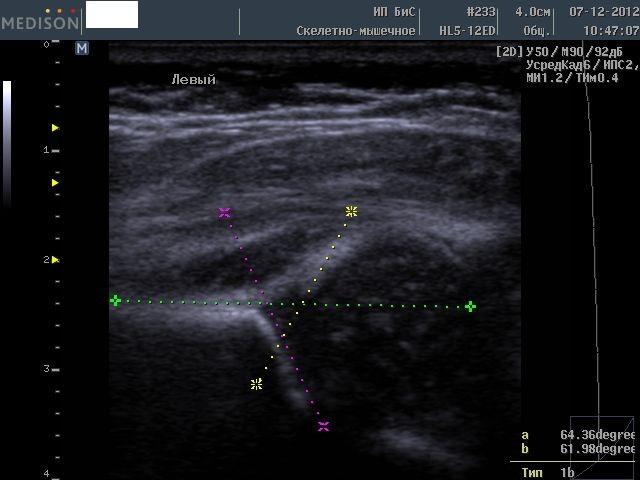 Результат УЗИ тазобедренных суставов