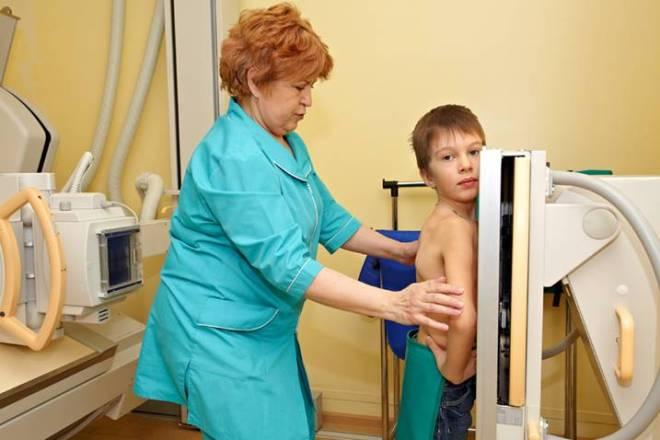Рентген позвоночника ребенку