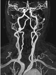 МРТ шейного отдела позвоночника: показания к проведению