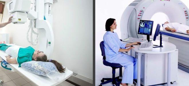 Что лучше: рентген или МРТ?