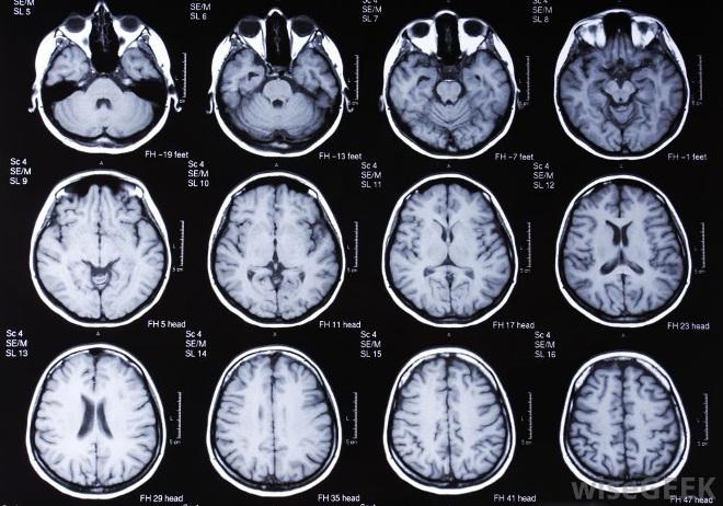 Снимок головного мозга на МРТ