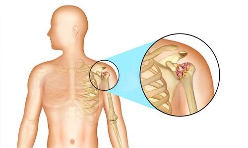 Симптомы и лечение артрита плечевого сустава в домашних условиях
