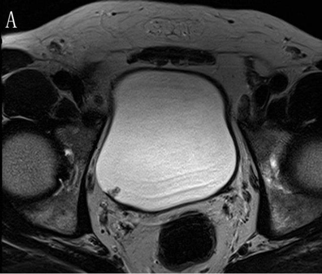 Снимок мочевого пузыря на МРТ