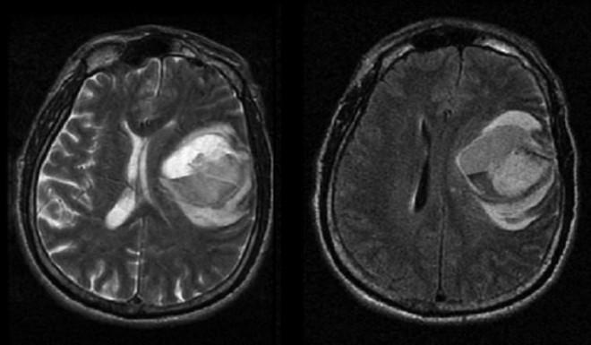 Отек мозгового вещества на снимке МРТ