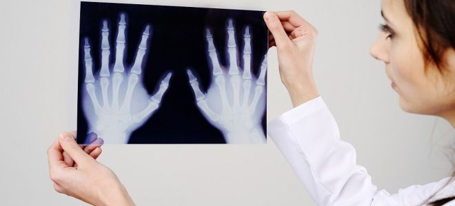 Назначение и проведение рентгена пальца