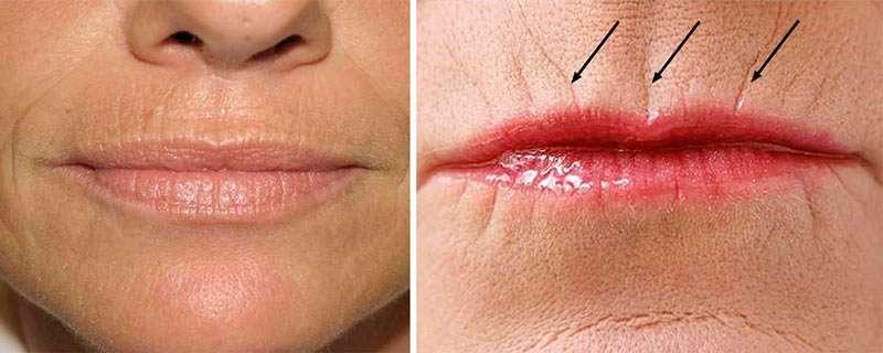 убраем морщины над верхней губой в домашних условиях