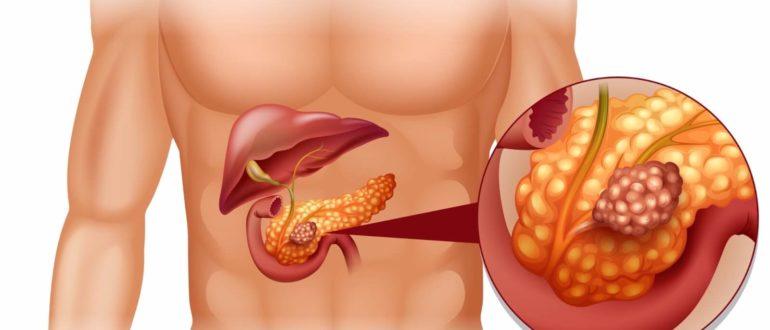 МР-исследование при патологии поджелудочной железы