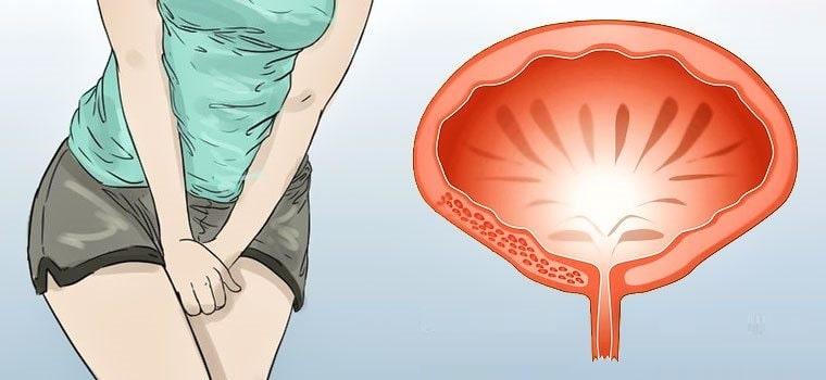 Показания МРТ в исследовании болезней мочевого пузыря: альтернативные методики, подготовка