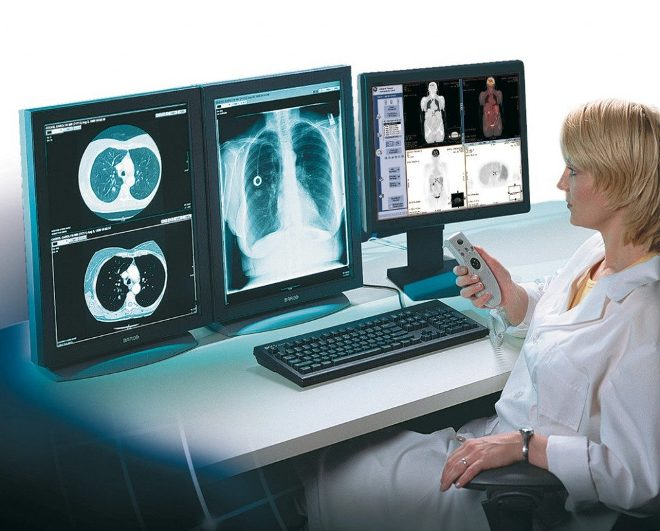 Результат МРТ всего тела на мониторе