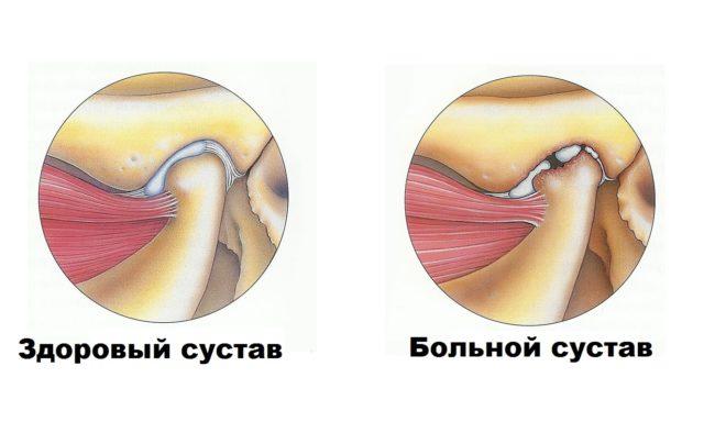 МРТ зубов: преимущества обследования