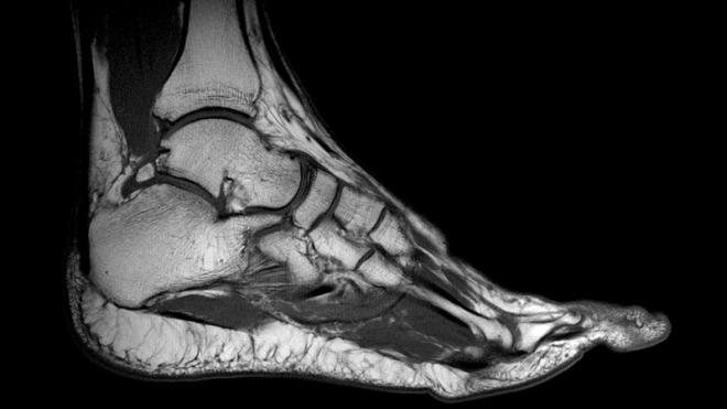 Снимок МРТ голеностопного сустава