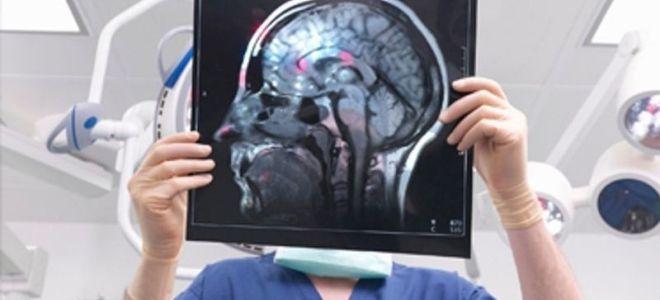 Какие бывают очаги в головном мозге на МРТ и при каких заболеваниях