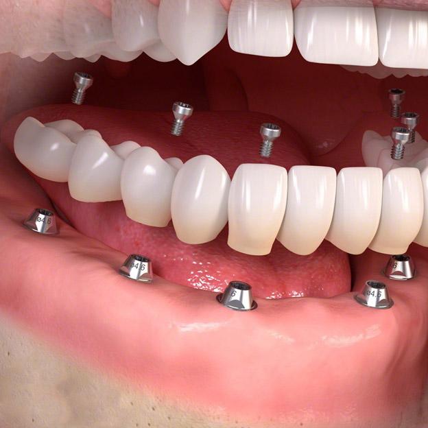 Рентген зубов: когда и зачем делают