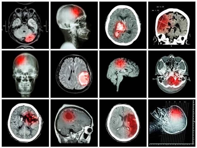 Снимки КТ мозга