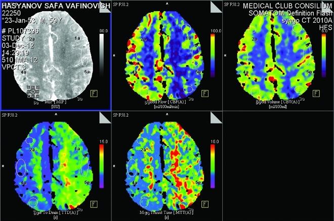 Снимок КТ перфузии головного мозга