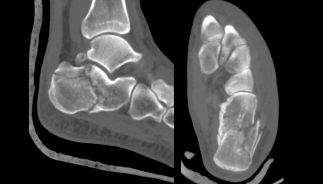 Перелом пяточной кости на снимке КТ