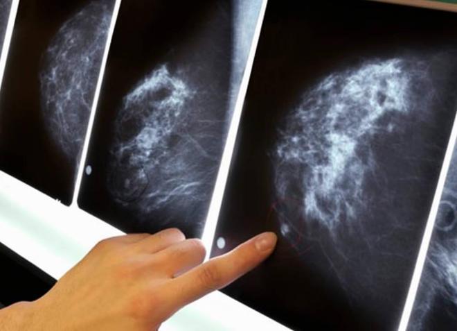 Снимок груди с помощью маммографии