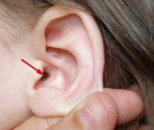почему появляется перхоть на голове на голове в ушах