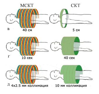 Технология спиральной компьютерной томографии: обзор метода, применение в клинической практике