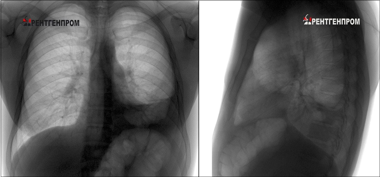 Осумкованный экссудативный плеврит