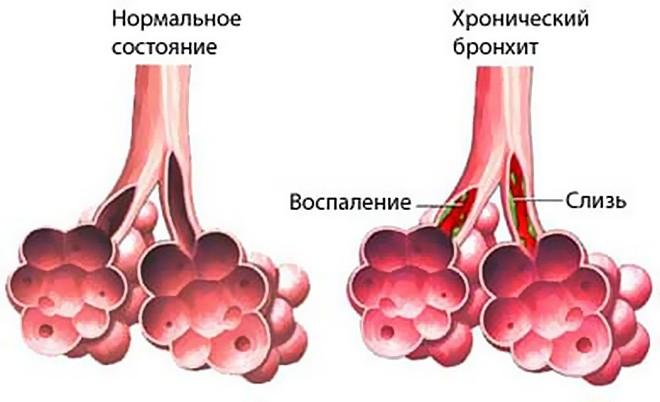 Клиническая картина бронхита