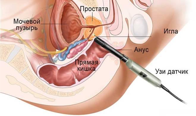 Трансректальное УЗИ мочевого пузыря