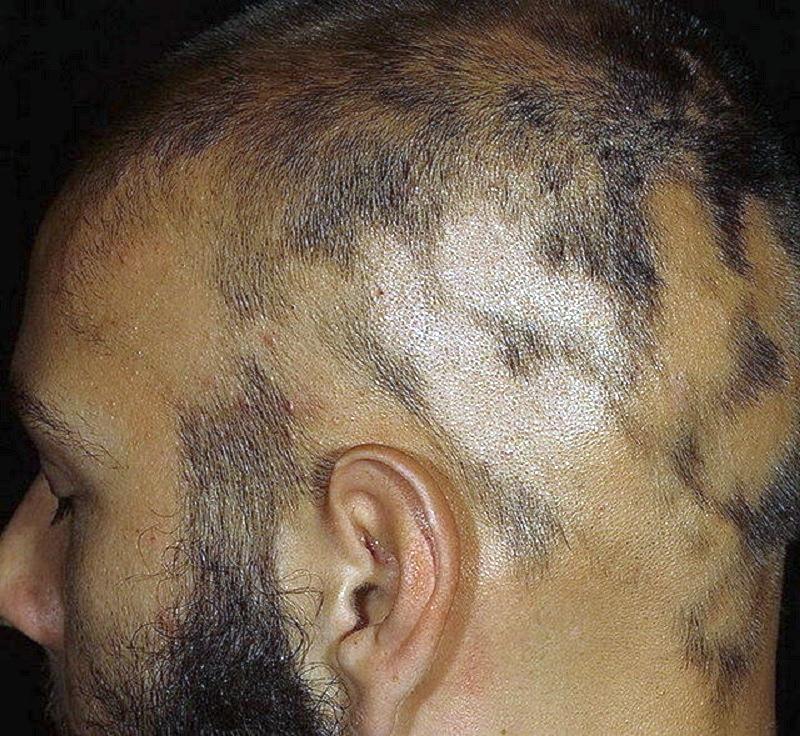 Какие гормоны влияют на выпадение и рост волос на голове у женщин: причины нарушений, лечение