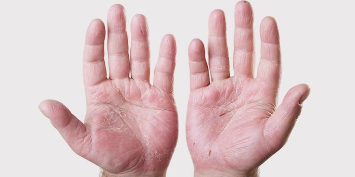 шелушение кожи на ладонях причины лечение и профилактика