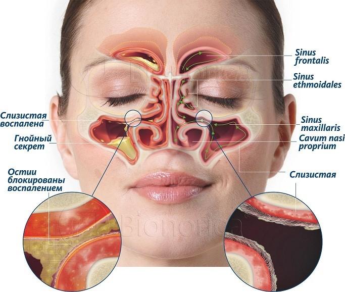 Пазухи в норме (слева) и при остром риносинусите (справа)