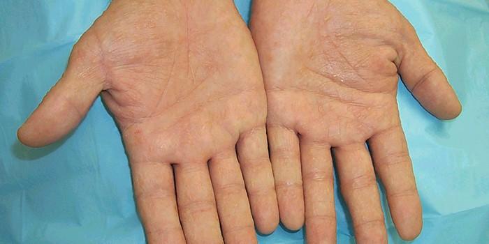 Проявления дерматита на ладонях