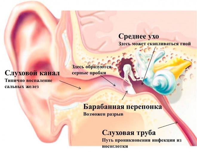 Частые болезни уха
