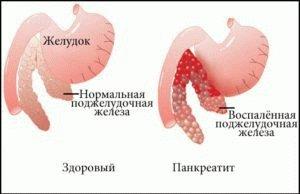 Воспалительный процесс поджелудочной железы