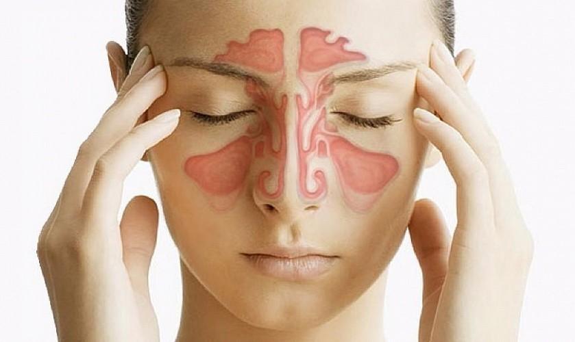 Катаральный фронтит может приводить к таким осложнениям, как менингит, абсцесс мозга или век.