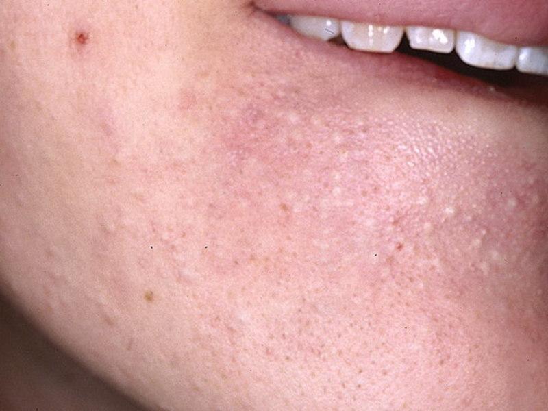 Как избавиться от белых точек на лице?