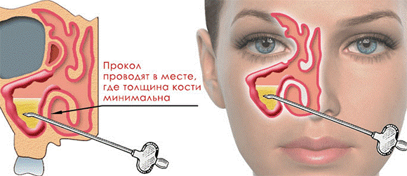 Пункция верхнечелюстной пазухи – способ лечения обострения хронического риносинусита