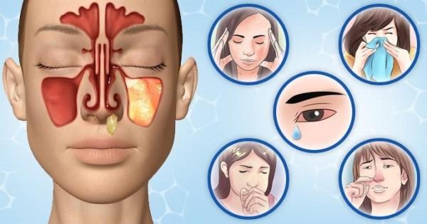 Кашель, заложенность носа, слезотечение - симптомы вирусного риносинусита
