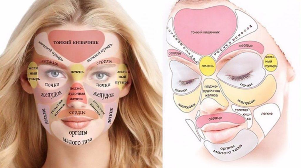 прыщи на лице в 35 лет причины способы лечения