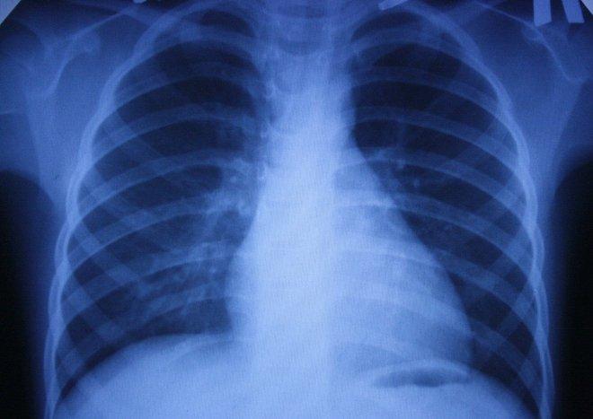 Рентгенограмма легких при астме