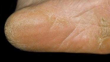 Как лечить грибок стопы: эффективные препараты и народные средства