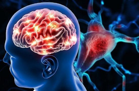 МРТ во время и после инсульта: какое делают