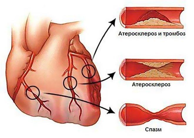 Атеросклероз и тромбоз сосудов
