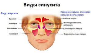 Детский гайморит особенный подход к диагностике