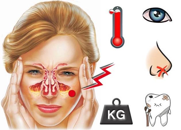 Основные симптомы острого гайморита.