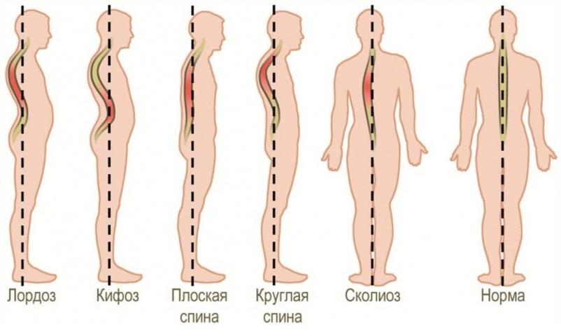 Можно ли увидеть остеохондроз на рентгене
