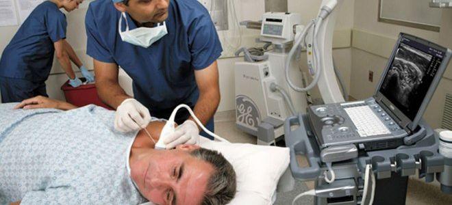 Как проводится триплексное сканирование брахиоцефальных артерий