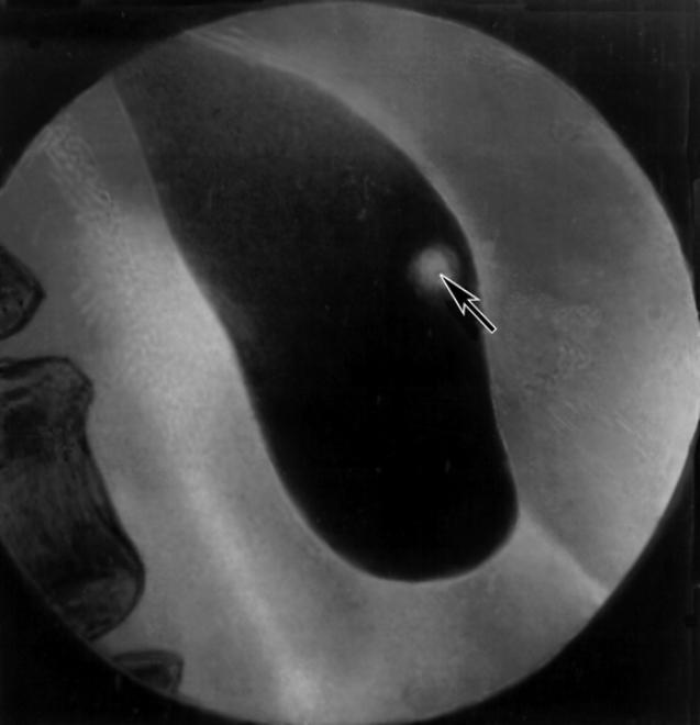 Снимок желчного пузыря