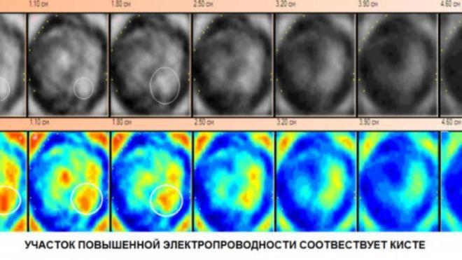 Киста на снимке электроимпедансной маммографии