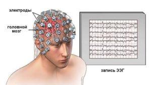 Отличия ЭЭГ и МРТ при обследовании головного мозга