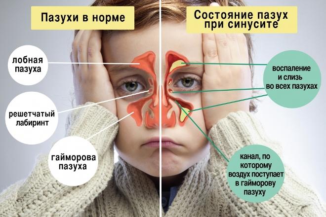 Состояние пазух при синусите у детей