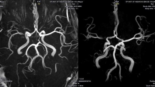 Снимок ангиографии головного мозга
